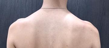 ルラ美容クリニックの痩身、メディカルダイエットの症例写真[ビフォー]