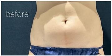 銀座長瀬クリニック 大阪院の痩身、メディカルダイエットの症例写真[ビフォー]