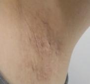 共立美容外科・歯科の傷跡治療、ケロイドの症例写真[アフター]