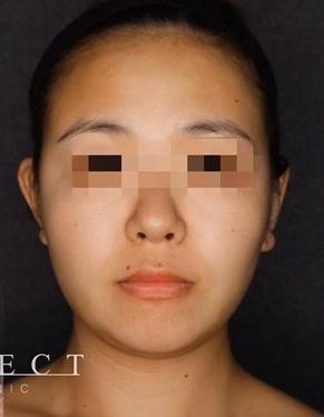 SELECT CLINIC (セレクトクリニック)の脂肪吸引の症例写真[アフター]