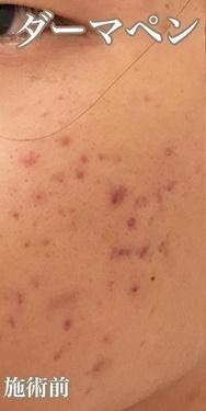 KOBE CLINIC 美容皮膚科・美容クリニックのニキビ・ニキビ跡の治療の症例写真[ビフォー]