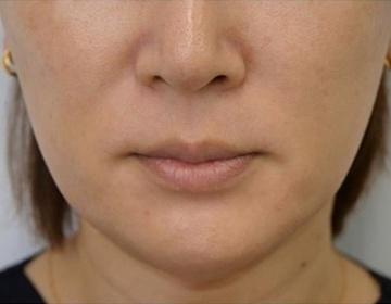 静岡美容外科橋本クリニックの顔のしわ・たるみの整形(リフトアップ手術)の症例写真[ビフォー]