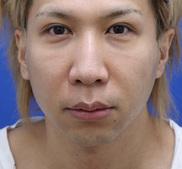 オザキクリニックLUXE新宿の症例写真[ビフォー]