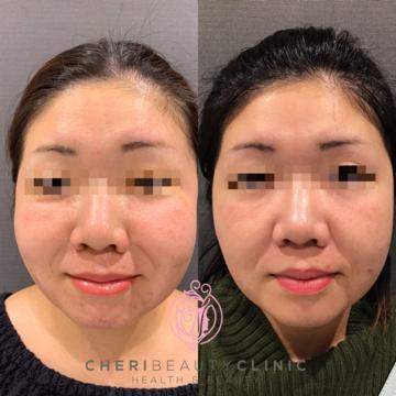 CHERI BEAUTY CLINIC (シェリビューティークリニック)のニキビ治療・ニキビ跡の治療の症例写真