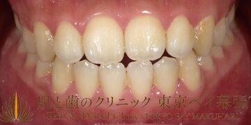 肌と歯のクリニック 東京ベイ幕張の審美歯科の症例写真[ビフォー]