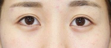 目尻切開+埋没法二重術(エクセレントアイ)両側6点の症例写真[アフター]