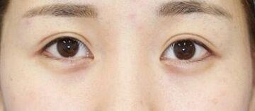 新宿ラクル美容外科クリニックの目・二重の整形の症例写真[アフター]