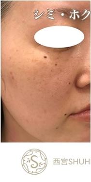 西宮SHUHEI美容クリニックのホクロ除去・あざ治療・イボ治療の症例写真[ビフォー]