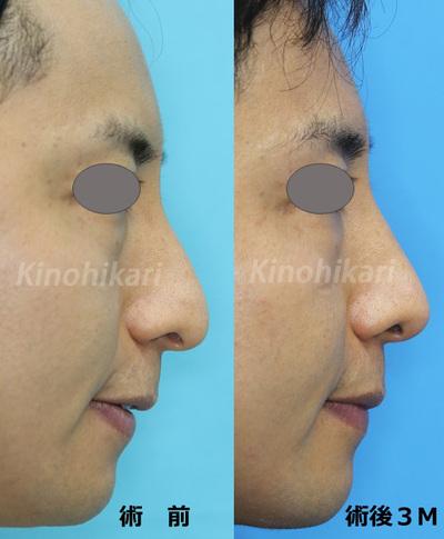 鼻短縮術+ハンプ切除の症例写真