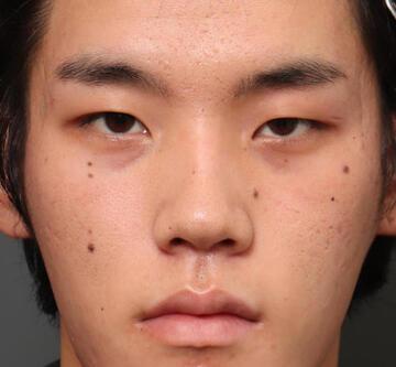 オザキクリニック LUXE新宿の目・二重の整形の症例写真[ビフォー]