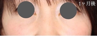 切らない目の下のたるみとりとり(目の下への脂肪注入併用)の症例写真[アフター]