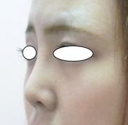 N クリニックの鼻の整形の症例写真[アフター]