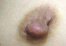 ガーデンクリニックの乳首・乳輪の整形の症例写真[ビフォー]