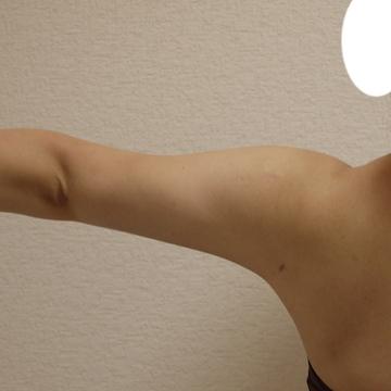 しらさぎ形成クリニックの脂肪吸引の症例写真[アフター]