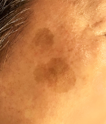 ローズマリークリニックのシミ治療(シミ取り)・肝斑・毛穴治療の症例写真[ビフォー]