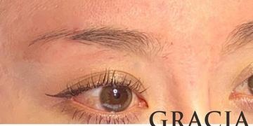 GRACIA clinic(グラシアクリニック)のアートメイクの症例写真[ビフォー]
