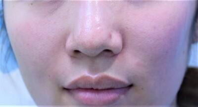 20代女性 鼻尖縮小(PDSプレート+クローズ法 鼻翼縮小の症例写真[ビフォー]