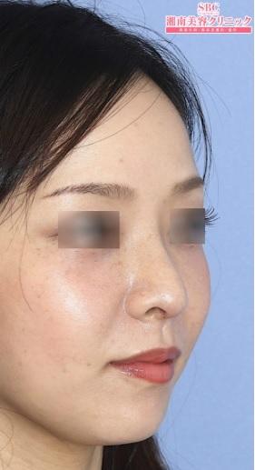 湘南美容クリニック品川院の鼻の整形の症例写真[アフター]