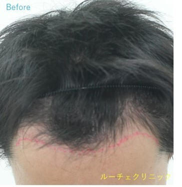 ARTAS(アルタス)自毛植毛術の症例写真[ビフォー]
