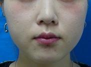 東京中央美容外科・美容皮膚科の顔の整形(輪郭・顎の整形)の症例写真[アフター]