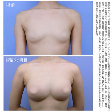 の豊胸手術(胸の整形)の症例写真