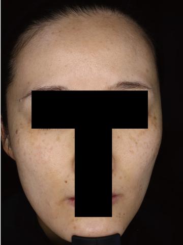 すなおクリニックのシミ取り・肝斑・毛穴治療の症例写真[ビフォー]