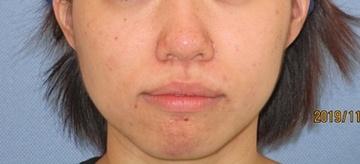 トキコクリニック 京都四条院のニキビ治療・ニキビ跡の治療の症例写真[アフター]
