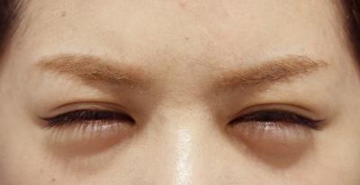 【眉間に刻み込まれたシワ、解消しませんか?】ボトックス注射の症例写真[アフター]
