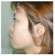 恵聖会クリニックの顔の整形(輪郭・顎の整形)の症例写真[ビフォー]