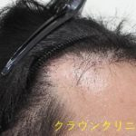 クラウンクリニック銀座院の植毛・自毛植毛の症例写真[ビフォー]