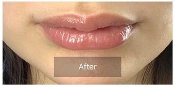 銀座長瀬クリニック 大阪院の口もと、唇の整形の症例写真[アフター]