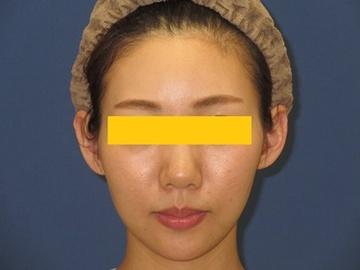トキコクリニック 京都四条院の顔の整形(輪郭・顎の整形)の症例写真[アフター]