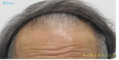 ARTAS(アルタス)9x自毛植毛術の症例写真[ビフォー]