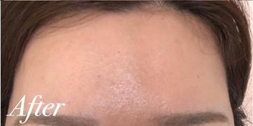 表参道スキンクリニックの顔のしわ・たるみの整形の症例写真[アフター]