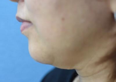 ウルセラ(HIFU/ハイフ)による顎下の引き締めの症例写真[ビフォー]