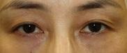 ヴィンテージビューティークリニック横浜の目・二重の整形の症例写真[ビフォー]