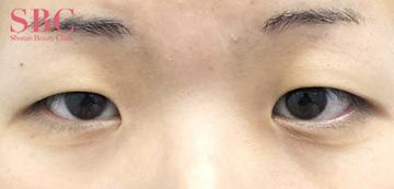 湘南美容クリニック高松院の目・二重の整形の症例写真[ビフォー]