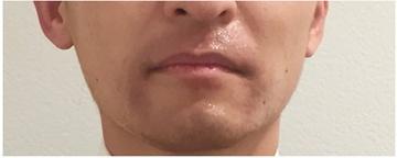西宮SHUHEI美容クリニックの医療レーザー脱毛の症例写真[アフター]