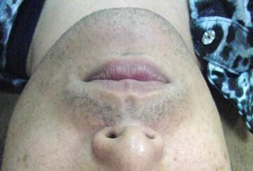 新宿ビューティークリニックの医療レーザー脱毛の症例写真[ビフォー]