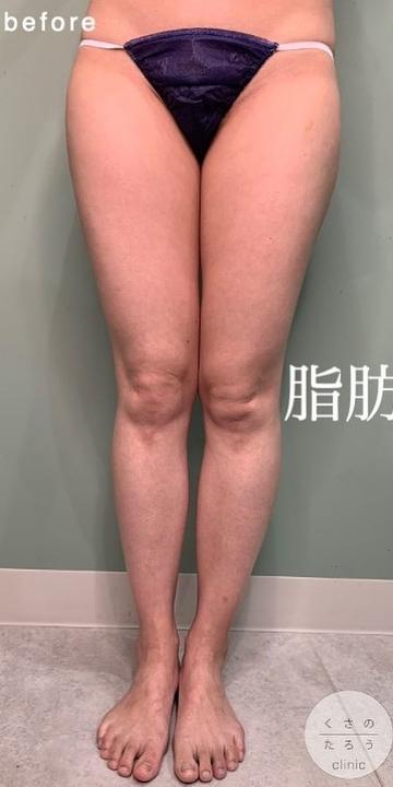 くさのたろうクリニックの脂肪吸引の症例写真[ビフォー]