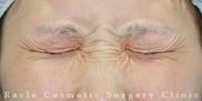 新宿ラクル美容外科クリニックの顔のしわ・たるみの整形(リフトアップ手術)の症例写真[ビフォー]