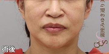 銀座みゆき通り美容外科 大阪院の顔のしわ・たるみの整形(リフトアップ手術)の症例写真[アフター]