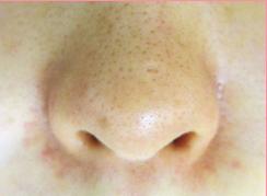 ★赤ら顔+鼻周りの毛細血管拡張症★の症例写真[アフター]