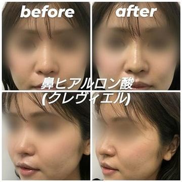 ルラ美容クリニックの鼻の整形の症例写真