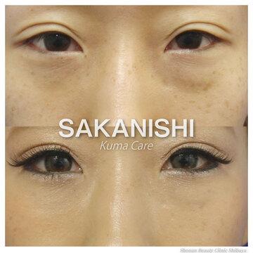 湘南美容クリニック 渋谷院の目元の整形、くま治療の症例写真