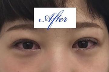 東郷美容形成外科福岡の目・二重の整形の症例写真[アフター]