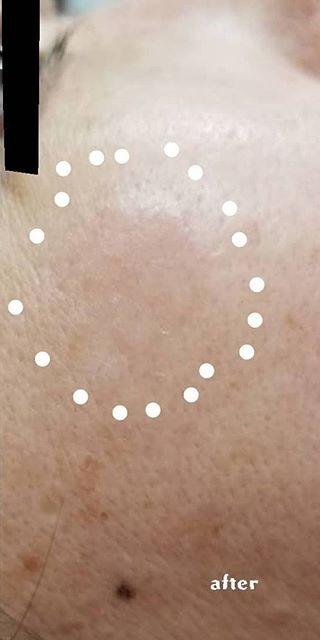 ゆきおかクリニックのシミ治療(シミ取り)・肝斑・毛穴治療の症例写真[アフター]