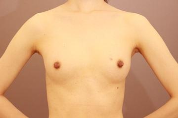 Mods Clinic (モッズクリニック)の豊胸手術(胸の整形)の症例写真[ビフォー]