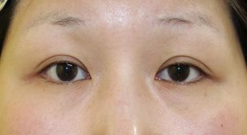 千葉中央美容形成クリニックの目・二重の整形の症例写真[ビフォー]