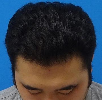 東京中央美容外科・美容皮膚科の薄毛治療・AGA・発毛の症例写真[アフター]